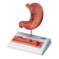 22720105842A3BS_Stomach_with_Ulcers_Model