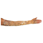 LympheDivas Adele Compression Arm Sleeve And Gauntlet,Each,ADELE